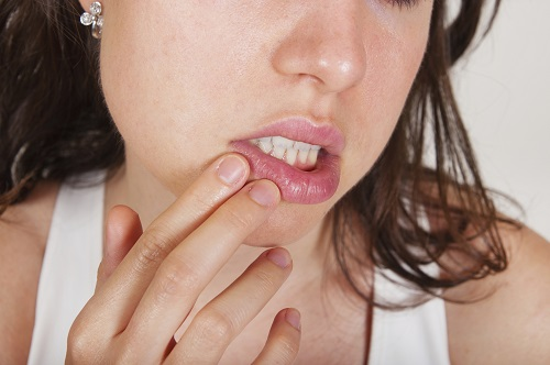 dentist San Antonio TX - Is Oral Herpes Something That Can